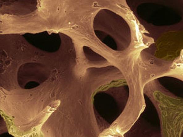 Osteoporosi: 10 e 11 dicembre giornate di prevenzione nelle nostre farmacie
