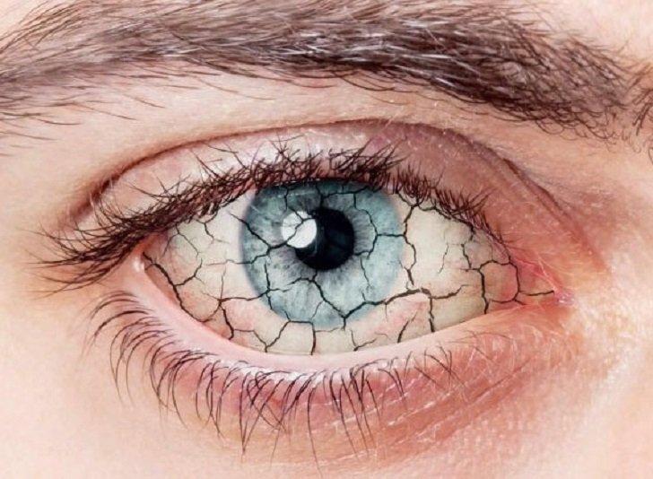 Occhio secco: i sintomi che offuscano le tue giornate…